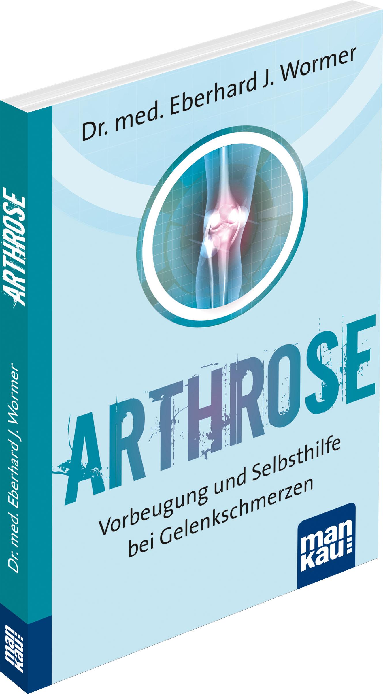 Arthrose – Ursachen, Formen, Verlauf und Behandlungsmöglichkeiten von Gelenkverschleiß